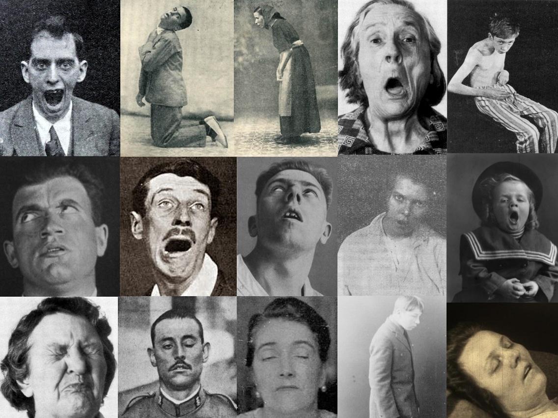 «Летаргический энцефалит» - загадочная болезнь Первой мировой войны